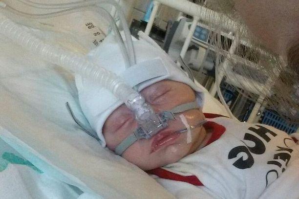 Bartliffien vauva joutui reaktion vuoksi sairaalaan.