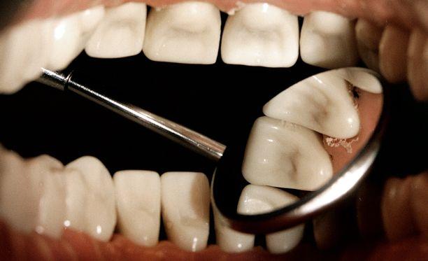 34 vuotta sitten yläasteen oppilaan hampaat menivät remonttiin - jotka remontoidaan vasta nyt.