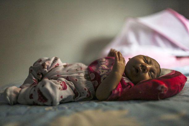 Manuelly Araujo da Cruz on yksi zikaviruksen vuoksi mikrokefaliaan eli pienipäisyyteen sairastuneista. Hänet on kuvattu Brasiliassa helmikuussa 2015.