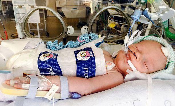 Kaleb sai pysyvän aivovamman, koska kärsi hapenpuutteesta synnytyksen yhteydessä. Hänen ei uskottu selviävän hengissä.