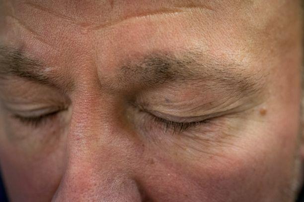 Pieni ruudin hippu vasemmassa silmäkulmassa on imatralaiselle Anssi Kianderille pysyvä muisto 22 vuoden takaisesta uudenvuoden yön ilotuliteonnettomuudesta omalla pihalla.