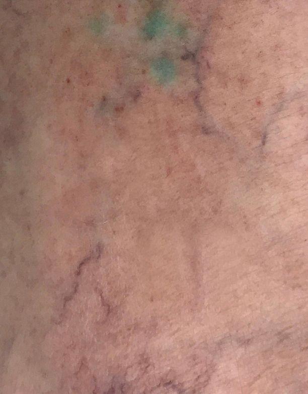 Tatuointi Saunominen