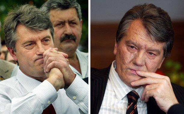 Ukrainan ex-presidentti Viktor Jushtshenkon ulkonäkö muuttui dramaattisesti dioksiinimyrkytyksen vuoksi.