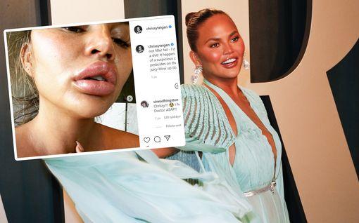 """Chrissy Teigen sai allergisen reaktion - huulet turposivat: """"Näytän seksinukelta"""""""