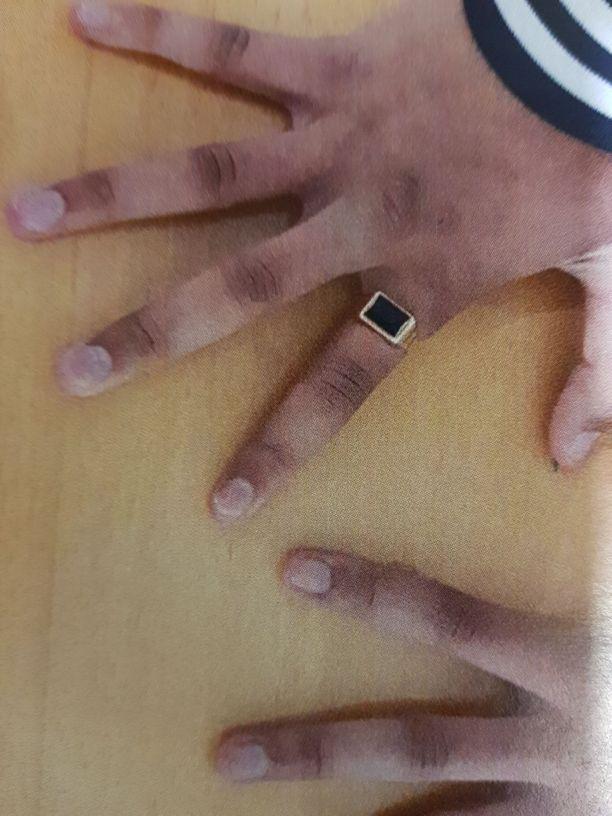 Poliisi kuvasi nuorukaisen kädet heti kiinnioton jälkeen.