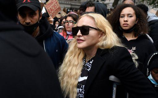 """Madonna ei anna jalkavaivojen nujertaa – julkaisi paidattoman kuvan: """"Kaikilla meillä on tukikeppimme"""""""