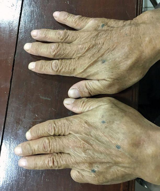 Thaimaan poliisin jakamassa kuvassa näkyy, että Shirailta puuttuu toinen pikkurilli. Yakuzan jäsenet voivat leikata sormensa irti rangaistakseen itseään virheistä.
