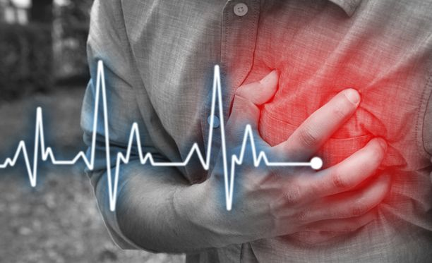 Sydän- ja verisuonitaudit ovat suomalaisten yleisin kuolinsyy.