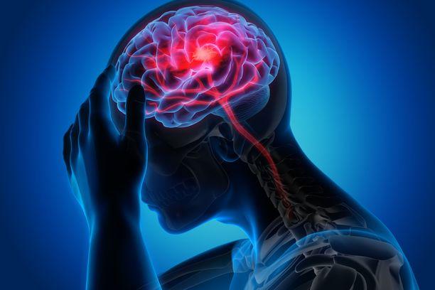 Aivoveritulppa voi olla potilaalle itselleen aivan kivuton.