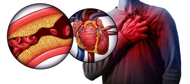 Testi voi selvittää riskin, vaikka se ei näkyisikään ulospäin esimerkiksi kohonneena kolesterolina.