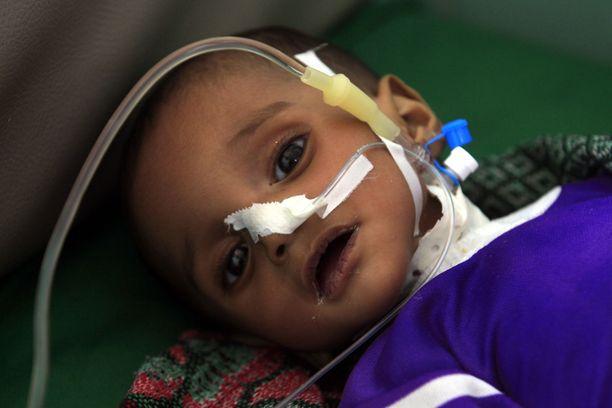 Jemenissä 1,8 miljoonaa alle viisivuotiasta lasta kärsii akuutista aliravitsemuksesta, kertoo Unicef.