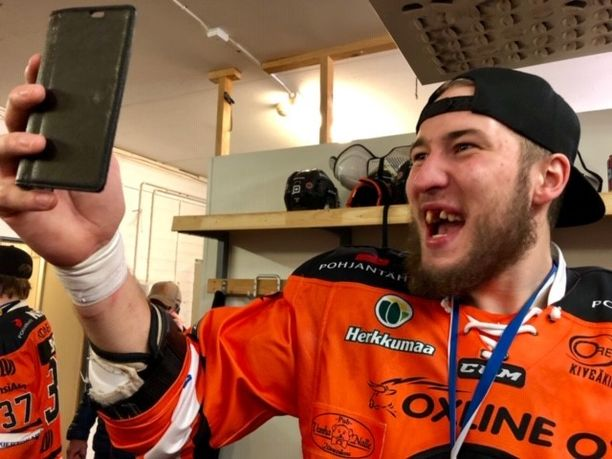 Taistelun jäljet näkyvät Miro Karjalaisen hammasrivistössä.