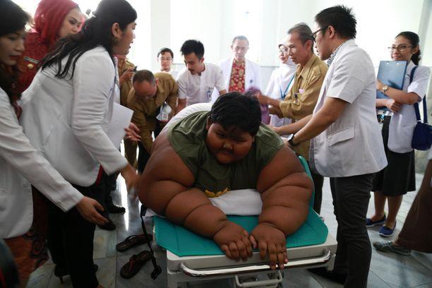 Permana leikattiin sairaalassa Jakartassa.