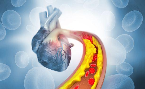 Kolesterolin vuoksi verisuonet voivat vaurioitua ja tukkiutua.