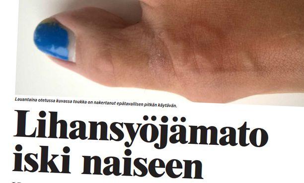 Iltalehti kertoi naisen piinasta maaliskuussa.