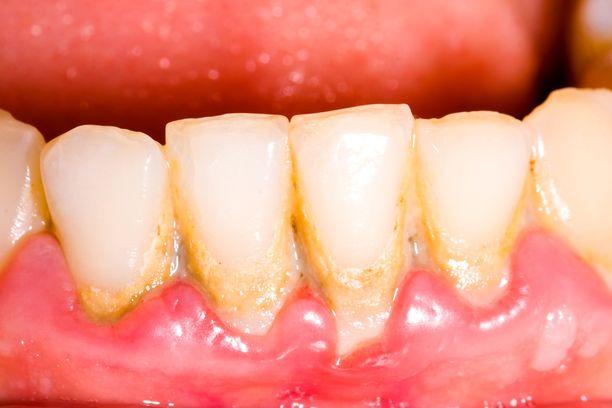 Ientulehduksen merkkejä ovat punoittavat ikenet ja verenvuoto hampaiden harjauksen yhteydessä.