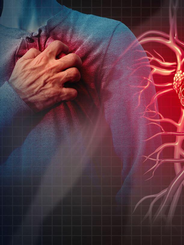 Hiljainen sydäninfarkti voi jäädä täysin huomaamatta. Se voidaan havaita vasta kuvantamalla.