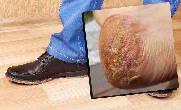 Ville sai rajun allergisen reaktion kaupasta ostamistaan kengistä. Yksittäinen kuluttajakokemus harvoin johtaa suuriin toimenpiteisiin.