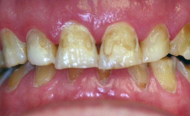 Sarjamurhaaja otti uhreiltaan hampaita muistoksi. Kuvituskuva.