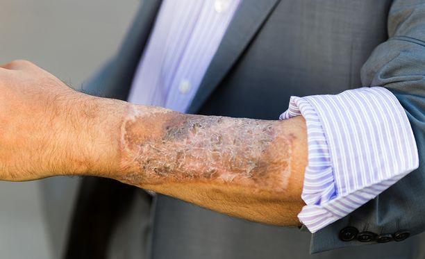 Peniksen rakentamiseen tarvittu iho otettiin käsivarresta.