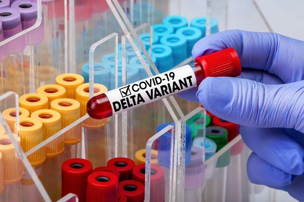 Koronatesti ei heti kerro, onko tartunnan aiheuttaja Delta-variantti vai ei. Variantin laatu selviää vasta sekvensoinnissa, johon voi mennä viikko tai kaksi.
