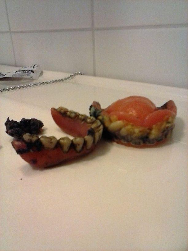 Tuula Närhi-Sireeni kauhistui vanhuksen tekohampaiden kunnosta. Kuvassa hampaat ennen pesua.