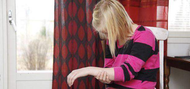 UHRI Perjantaisen pahoinpitelyn jäljiltä Emman käsi on pahasti turvoksissa ja voimaton.