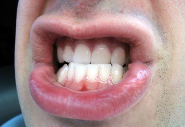 Hampaiden Lähtö