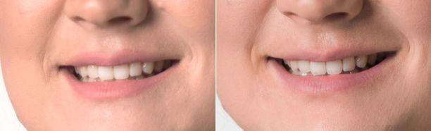 Vasemmalla hampaat ennen ja oikealla jälkeen hiilijauheen käytön.