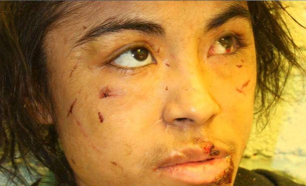Zunduri oli kauttaaltaan arpien ja haavojen peitossa, kun hän pakeni vangitsijoiltaan.