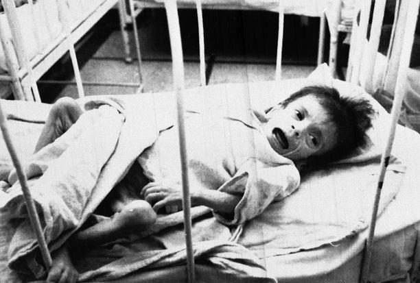 Orpolapsi aids-osastolla Victor Babesin sairaalassa Bukarestissa.