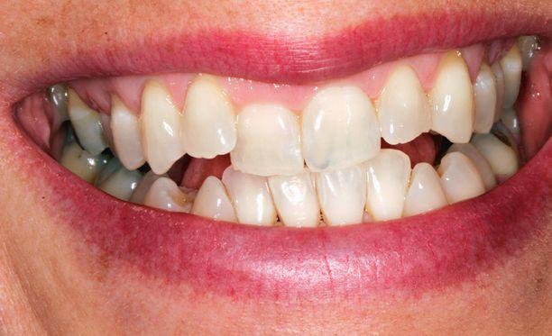 Lähtötilanne: tältä hampaat näyttivät ennen hoitoa.