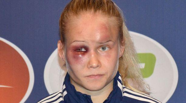 Tältä Petra Olli näytti syyskuussa.