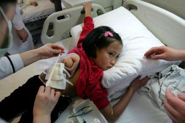 Ren Xiniltä poistettiin kaksossisaruksen käsi.