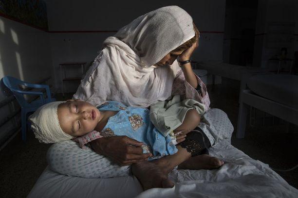UNOHDETUN SODAN HILJAISET UHRIT Afganistanilainen Najiba piteli sairaalassa sisarenpoikaansa Shabiria, joka haavoittui pommi-iskussa Kabulissa maaliskuussa. Arkipäivän kuvat -sarjan ykkössija.
