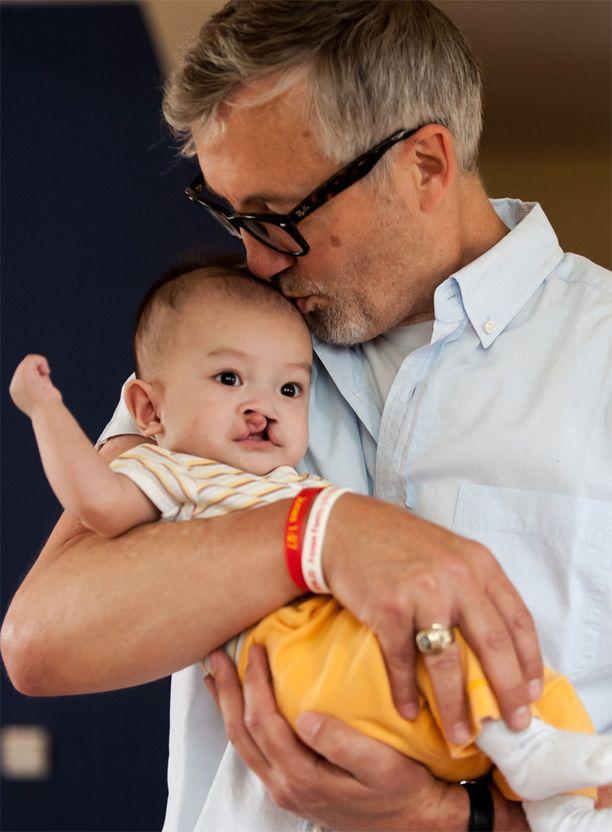 Huuli- ja suulakihalkiosta kärsivä vauva orpokodissa Tianjinissa Kiinassa. Arkistokuva vuodelta 2012.