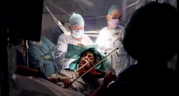 Kun potilas soitti, lääkärit pystyivät välttämään vahingoittamasta vasemman käden liikettä säätelevää osaa aivoista.