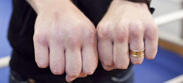 Robert Heleniuksen oikean käden nyrkki turposi selvästi ottelun jälkeen.