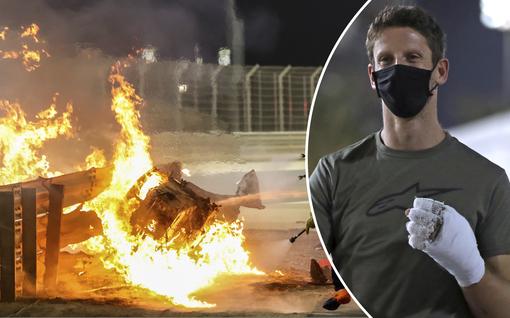 Kuva ei herkille! Liekkimerestä pelastunut F1-kuski julkaisi hurjan kuvan palovammoistaan