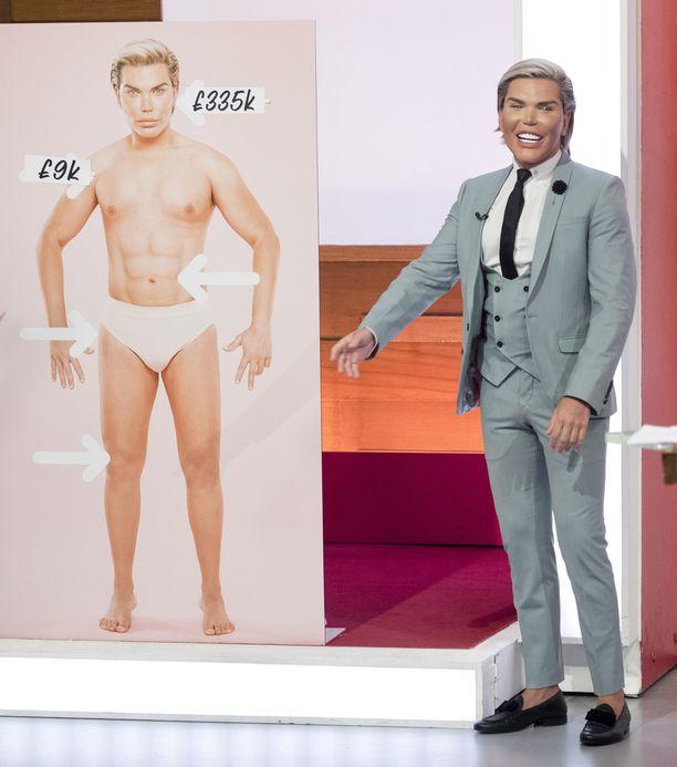 Alves kertoi kauneusoperaatioaddiktiostaan Loose Women -tv-ohjelmassa.