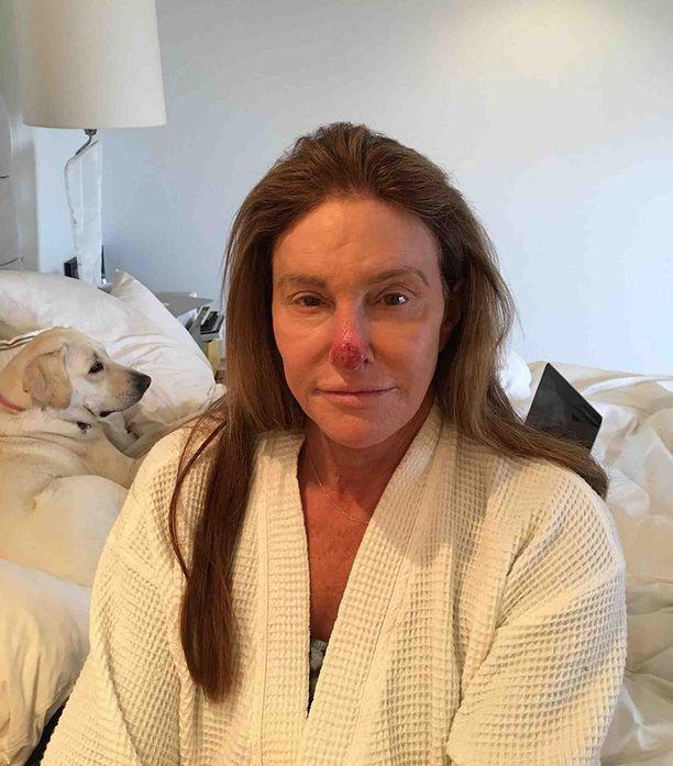 Caitlyn Jennerin nenä on leikkauksen jälkeen hurjan näköinen.