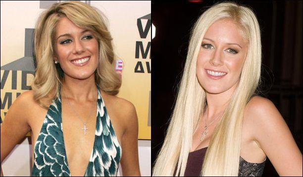 Vuonna 2006 Heidi poseerasi raikkaana ja parantelemattona. Vuonna 2009 rinnat ja huulet olivat jo saaneet täytettä ja nenä uuden muodon.