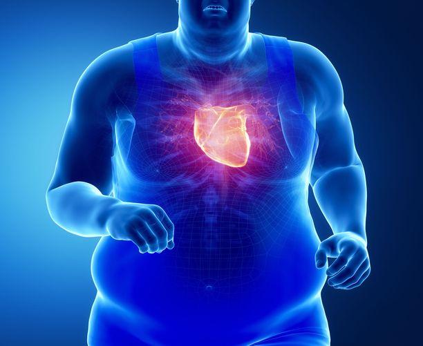 Vatsaonteloon ja sisäelimiin kertynyt rasva on vaara muun muassa sydämelle. Viskeraalinen rasva voi altistaa sepelvaltimotaudille.