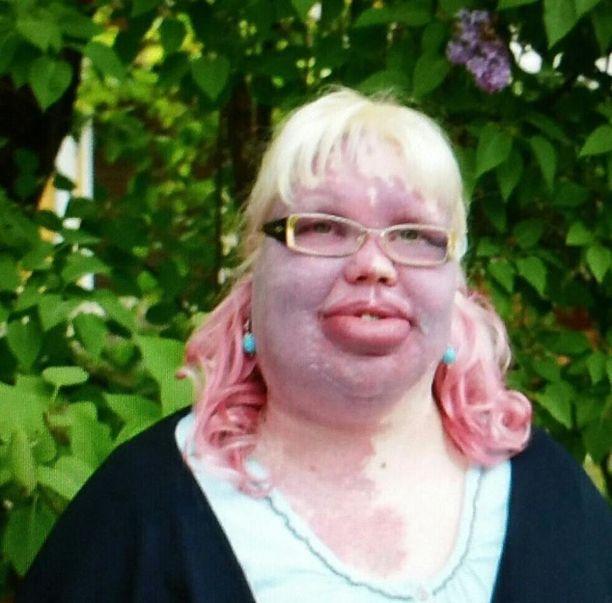 Nina Kanninen haluaa löytää vihdoin työpaikan ja teki siksi työnhakuvideon Facebookiin. Nuoren naisen harvinainen sairaus näkyy ulospäin, mutta ei ole estänyt sen enempää opintoja kuin sosiaalista elämääkään.