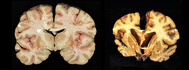 Vasemmalla skannauskuva normaaleista aivoista, oikealla CTE:n vaurioittamat aivot.