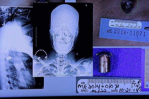 Oikeudessa esiteltiin röntgenkuvia Laquan McDonaldin ruumiista.