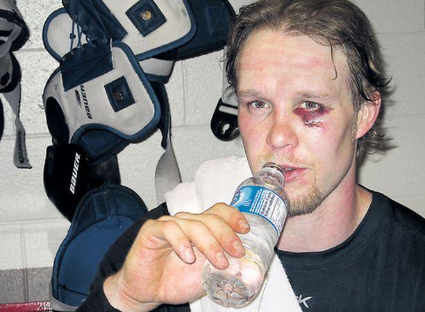 Edellisviikolla kiekon silmänsä alapuolelle saanut Janne Niinimaa jaksaa uskoa parempaan huomiseen.