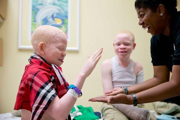 Monica Watson (oik.) leikittää lapsia proteesien laiton välillä.