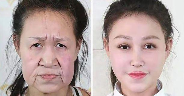 Vasemmalla 15-vuotias Xiao Feng ennen leikkausta ja oikealla leikkauksen jälkeen.