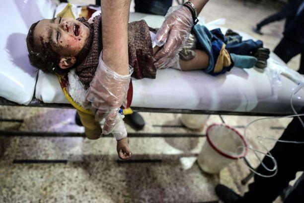 Pommituksissa loukkaantunut lapsi sai hoitoa kapinallisten hallussaan pitämässä Doumassa.